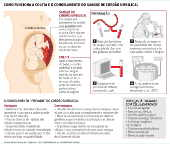 Como funciona a coleta e o congelamento do sangue de cordão umbilical